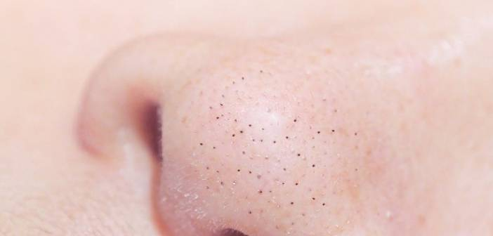 9 Easy Home Remedies to Remove Blackheads Fast At Home