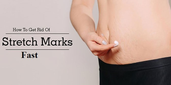 How to Get Rid of Stretch Marks Fast - 7 Proven Natural Strategies