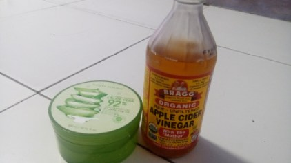 5 Ways to Use Apple Cider Vinegar to Cure Your Acne (Skin Benefits of Apple Cider Vinegar)