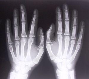 262066_xray_of_hands