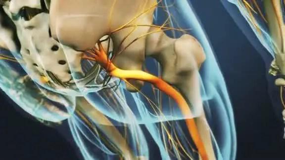 sciatic nerve back buttocks leg