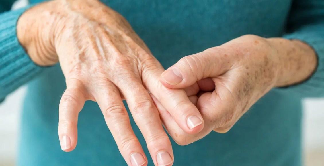Tips for Living with Rheumatoid Arthritis