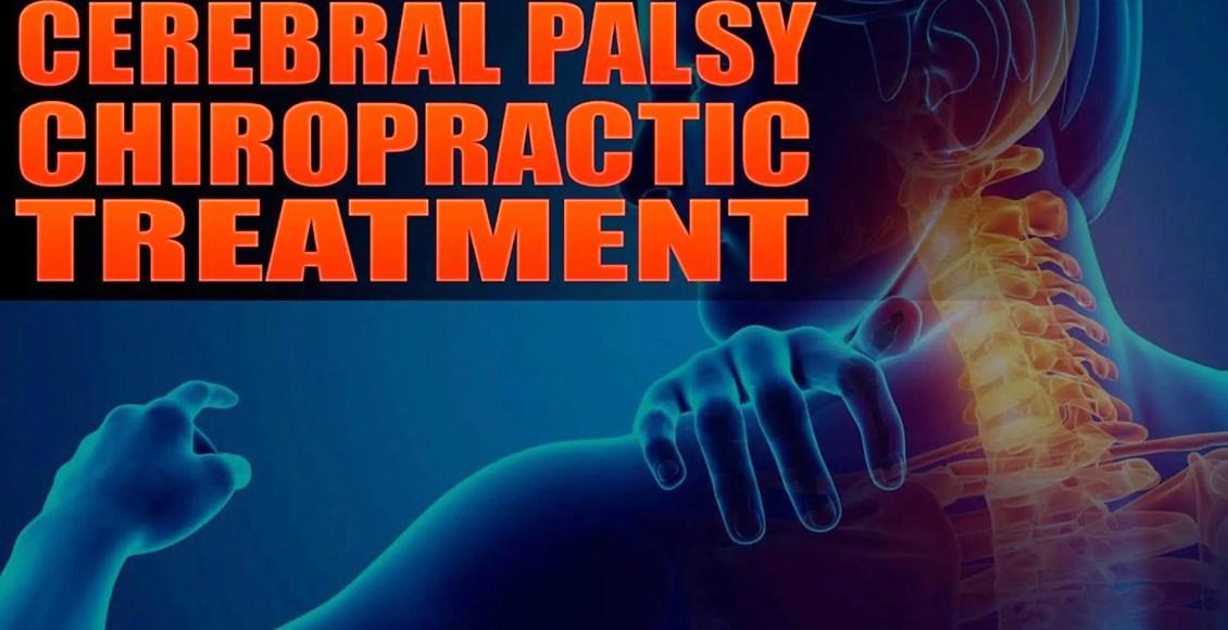 cerebral palsy el paso tx.