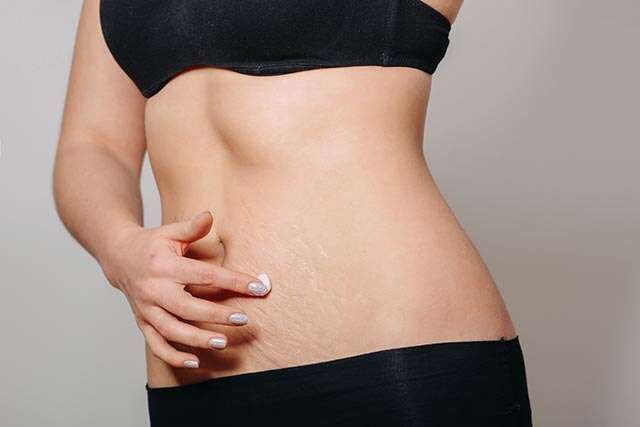 Ayurvedic Remedies to Remove Unwanted Stretch Marks