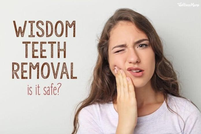 wisdom tooth extraction surgery