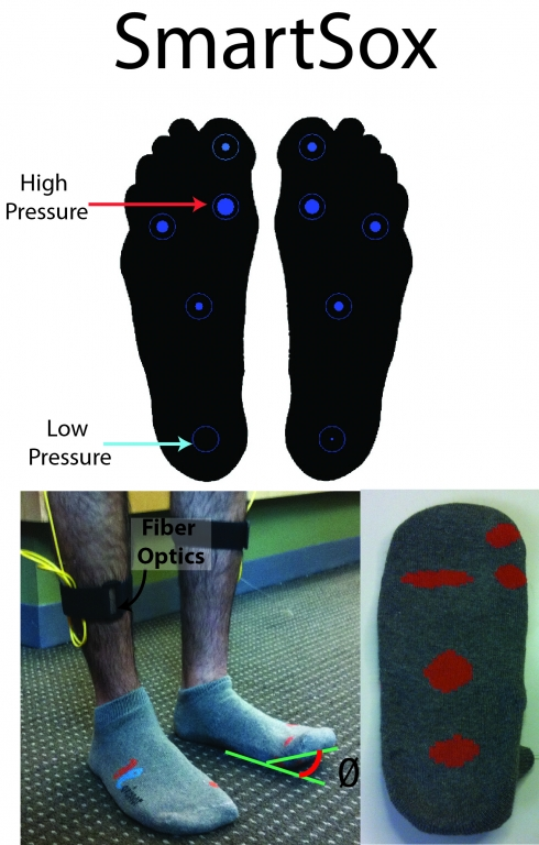 Smart Sox to Prevent Amputations