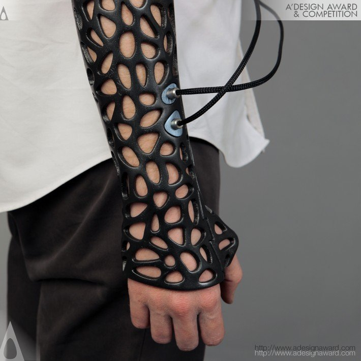 3D Printed Cast Mends Broken Bones Faster