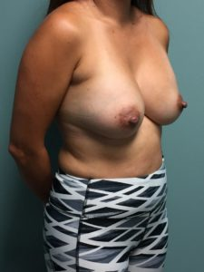 After Breast Augmentation