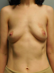 Before Breast Reconstruction