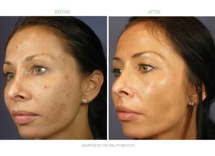 vi-peel-before-and-after