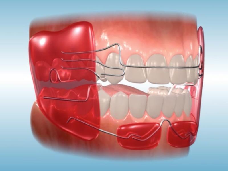 Orthodontic Appliances in Texas   Wentz Orthodontics