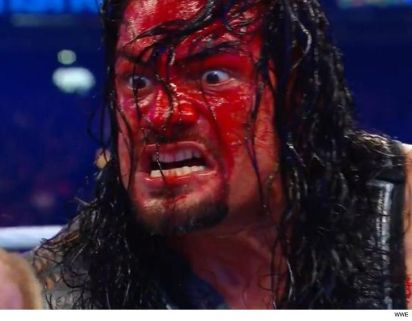 Reigns bloody face