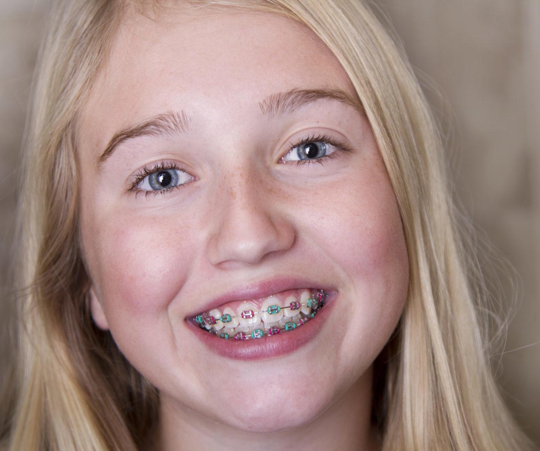 teen girl with multicolored braces West Arvada Orthodontics Arvada Colorado