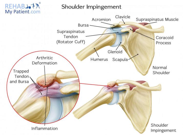 Primary Shoulder Impingement