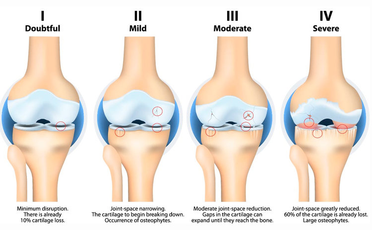 Osteoarthritis Stages