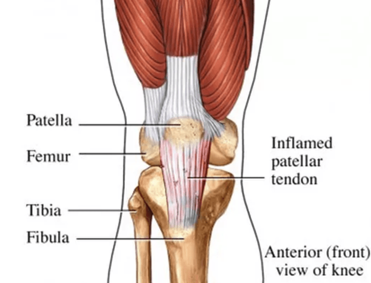Tendinitis bursitis