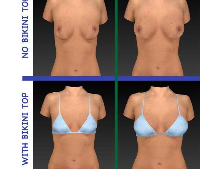Breast Sculptor Low Res Pics