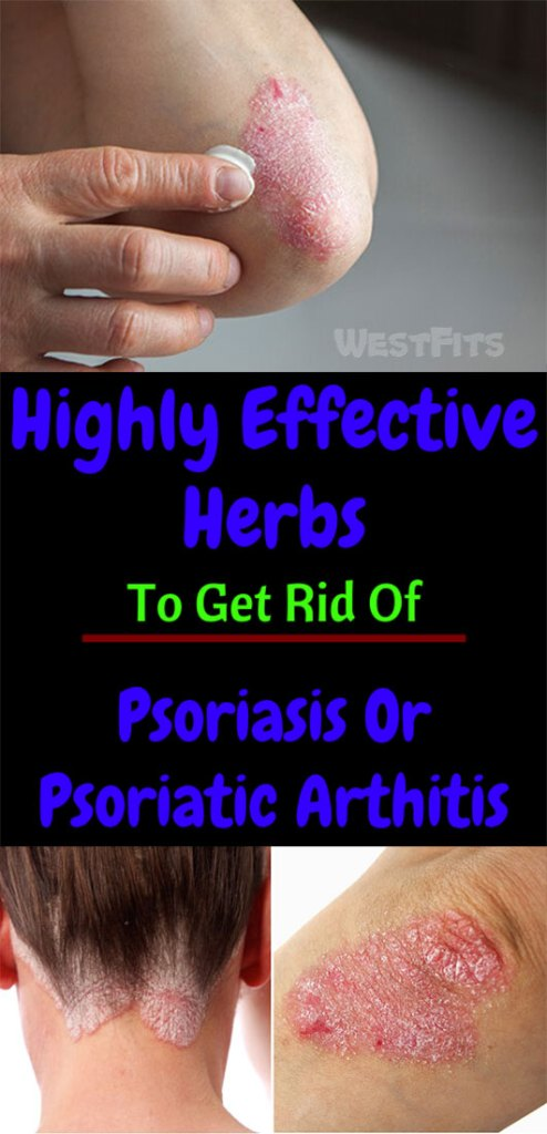 6 Highly Effective Herbs To Get Rid Of Psoriasis Or Psoriatic Arthitis