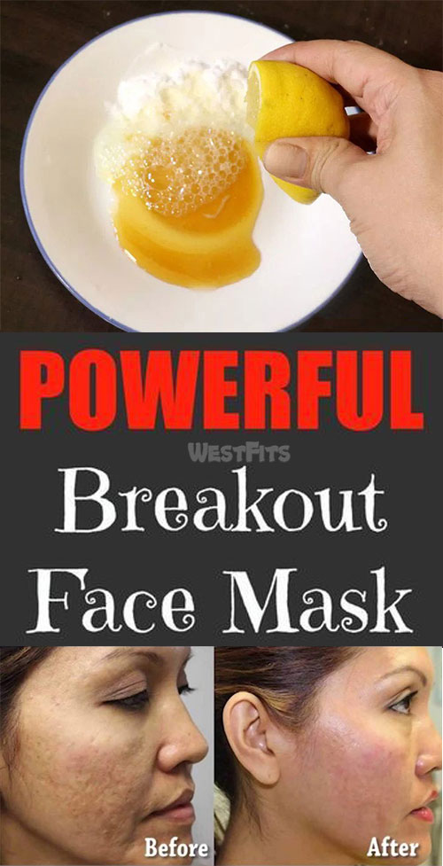 BLOTCHES FIGHTING FACE MASK FOR ACNE & BLACKHEADS