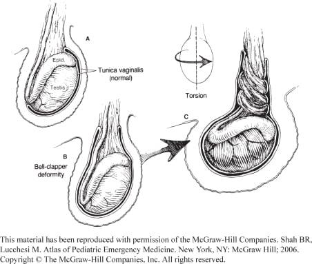 Non-Traumatic Urologic Emergencies in Men: A Clinical