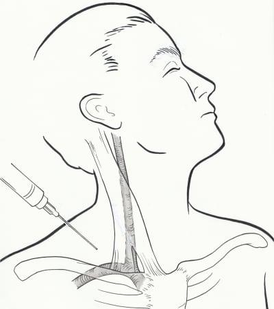 Supraclavicular Subclavian Vein Catheterization: The