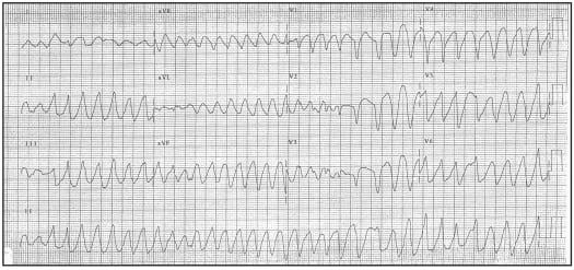 Wide Complex Tachycardias: Understanding this Complex