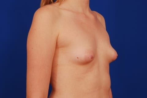 Consider, Teen puberty budding breasts nice message