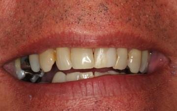 Etobicoke Dentist - West Metro Dental Before treatment