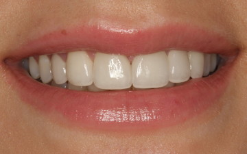 Etobicoke Dentist - West Metro Dental - After Veneers Treatment