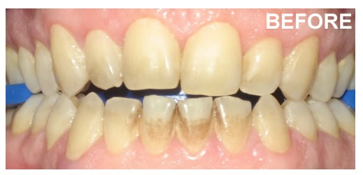 Etobicoke Dentist - West Metro Dental - Tooth underrepair