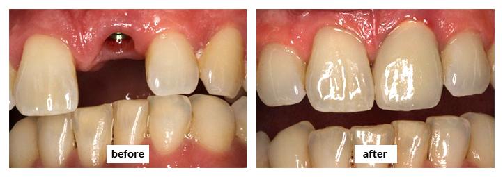 Etobicoke Dentist - West Metro Dental - Dental Implants Before and After
