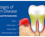 Etobicoke Dentist - West Metro Dental - Gum Disease - Periodontal Disease
