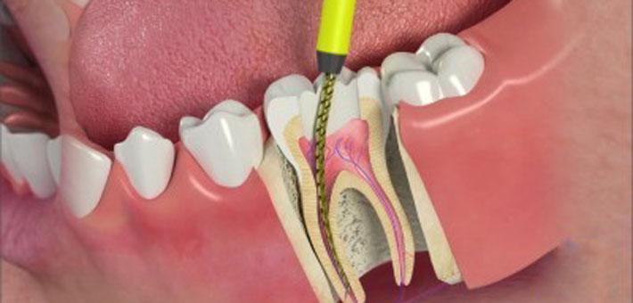 Metro Dental Etobicoke Proud To Have In House Endodontist