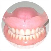 Treatments: Dentures