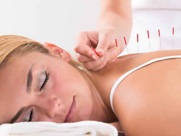West Texas Chiropractic - Acupuncture