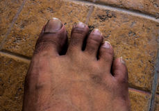 close-up-bare-feet-dirty-foot-to-illustrate-hazardous-area-unsafe-44637197