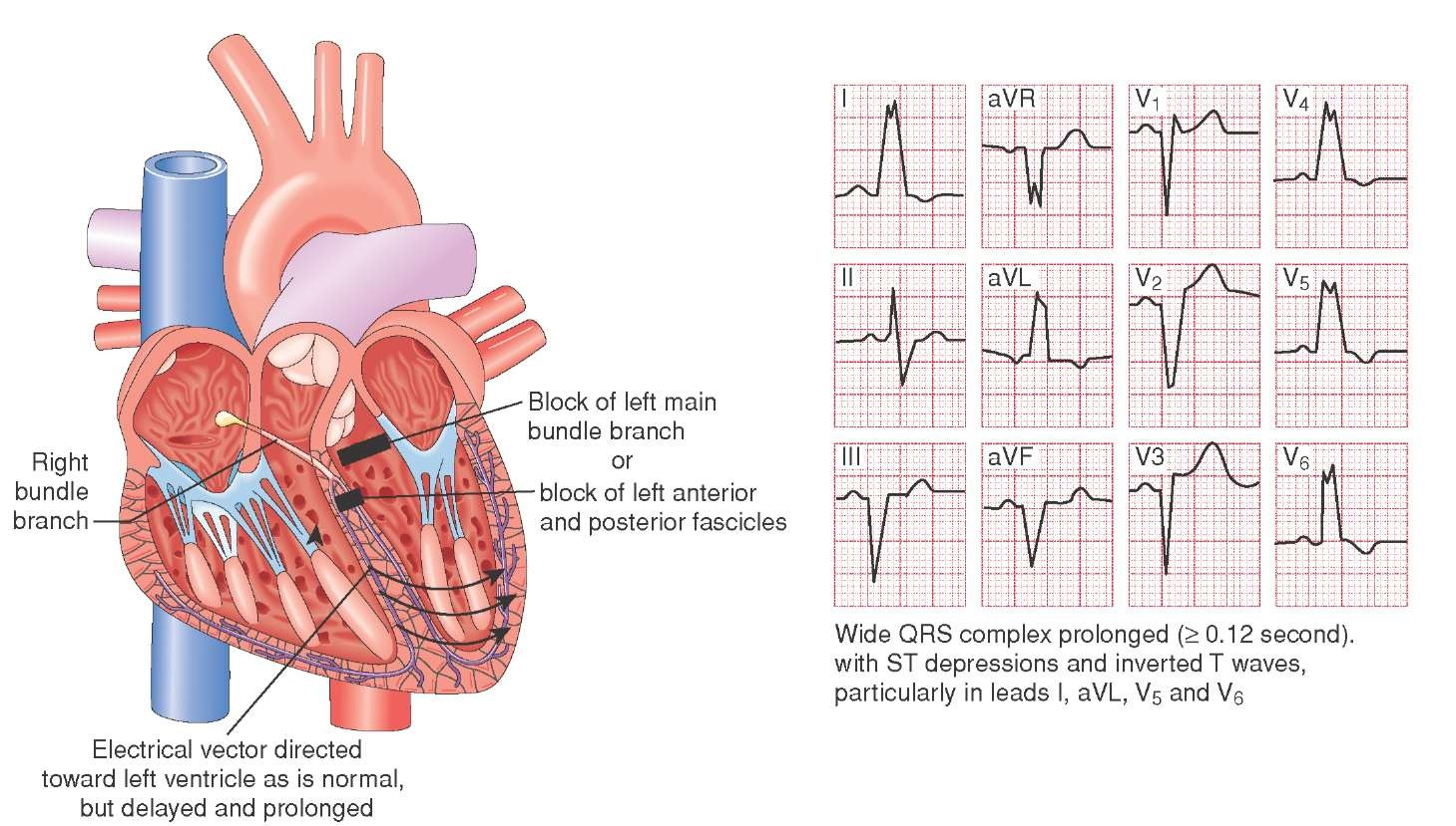 hight resolution of left bundle branch block