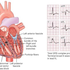 4 Lead Ekg Placement Diagram Trailer Wiring Way 12 Ecg Color Pictures To Pin On Pinterest