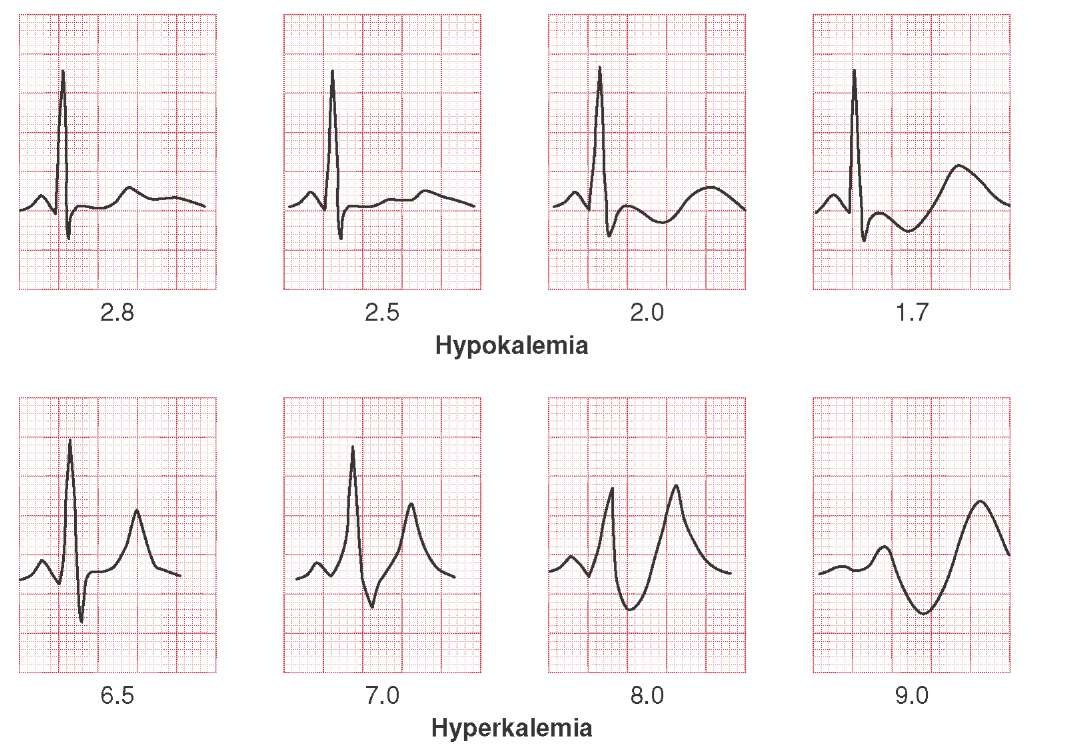 hight resolution of ecg changes associated with hypokalemia and hyperkalemia