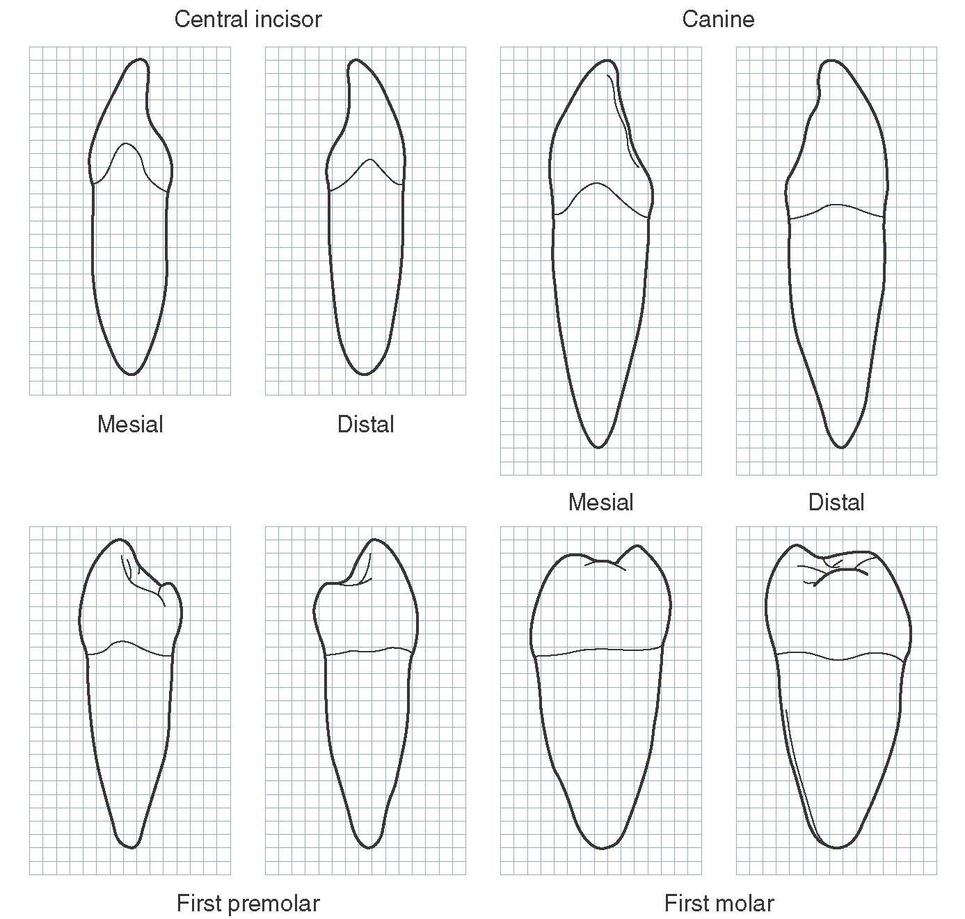 Ro Teeth Diagram