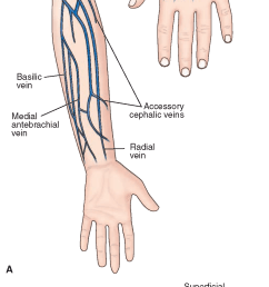 commonly used infusion sites a ventral and dorsal aspects of arm and hand [ 1025 x 2337 Pixel ]