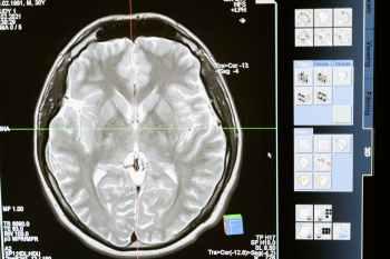 technology computer head health