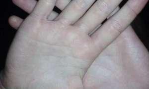 Kiedy powstaje ramię a kiedy ręka?