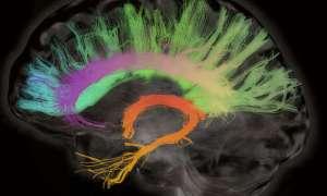 Sterowanie ruchem drugiej osoby za pomocą własnego mózgu