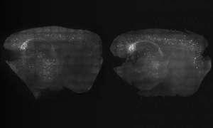 Stymulacja fal mózgowych może poprawić objawy Alzheimera