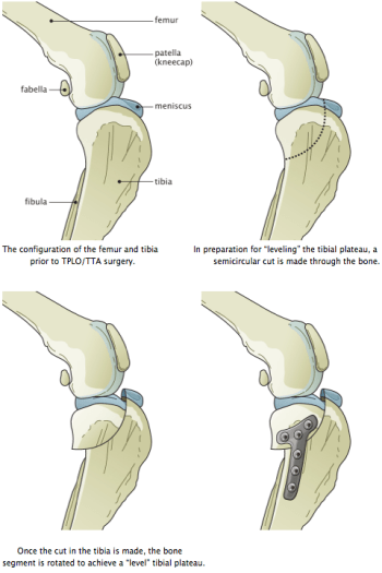 Steps of the TPLO surgery (image from saintfrancis.org)