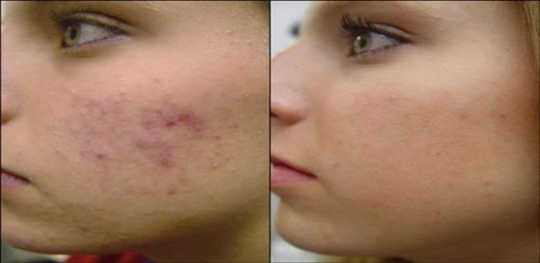 Natural Ways to Get Rid Of Pimples Quickly