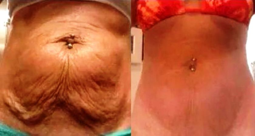 Get Rid of Saggy Skin with Neck Firming Agent – Exclusively Made for Mom-To-Be