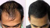 How Important it is for Hair Transplant Surgeon to be Ethical
