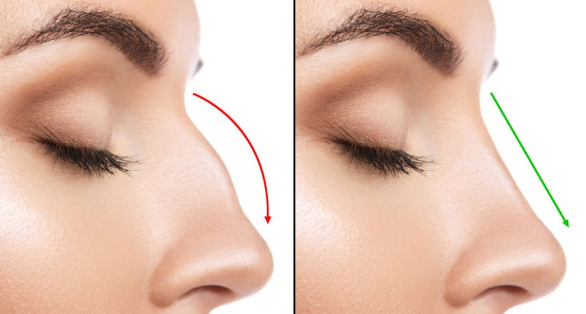 3 Things To Consider When Getting A Nose Job